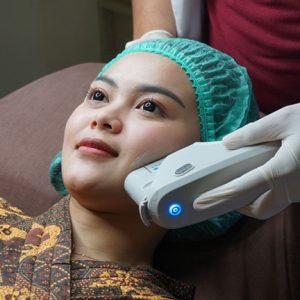 HIFU treatment Glow+ Clinic